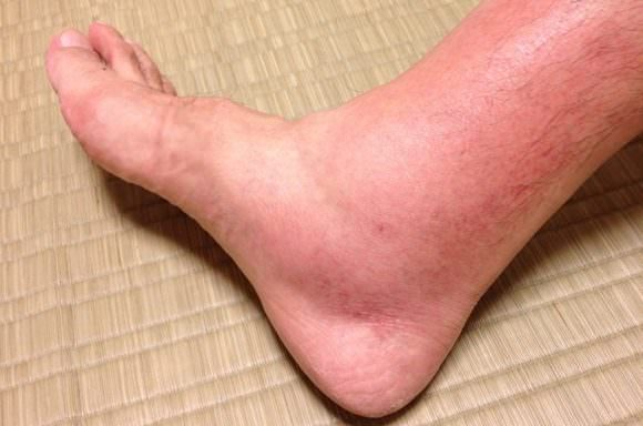 足の蜂窩織炎の写真