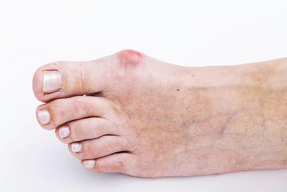 足の親指に腫れが出てしまった