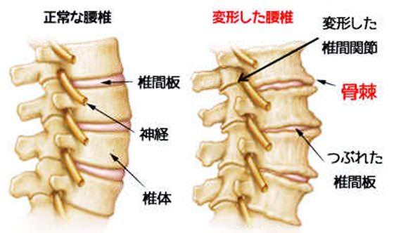 変形性腰椎症を表したイラスト