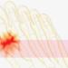 5分でわかる!痛風の症状にはどんなものがある?